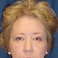 A frontal photo of a woman's face, showing the result of a brow lift.