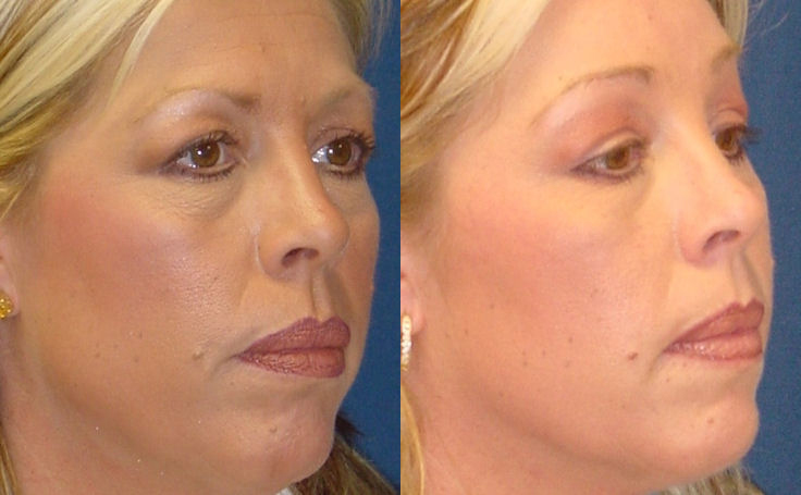 Before and after photo of an actual Brow Lift patient.