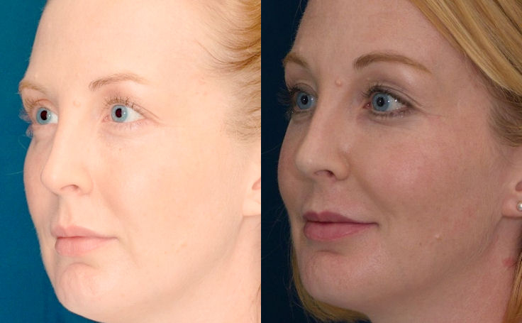 Browlift to rejuvenate the face angle