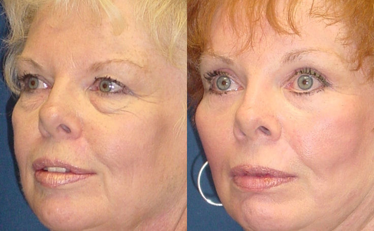 Brow Lift after weight loss