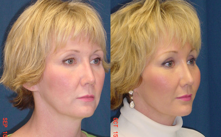 Brow Lift for patient in her 40's