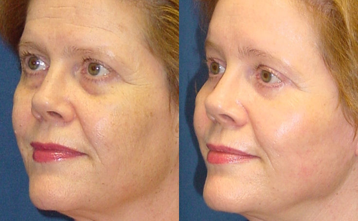 Brow Lift alternate angle view, patient 200