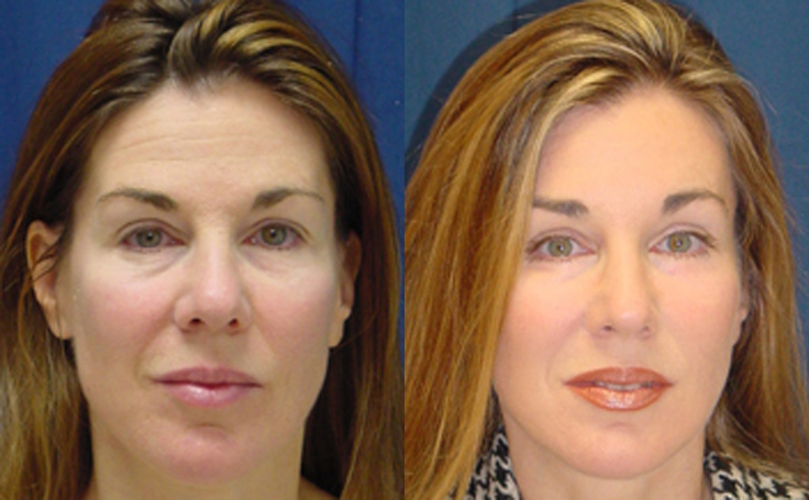 Brow Lift for a refreshed face