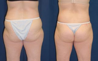 Before and after photo of an actual Butt Lift (skin tightening) patient.