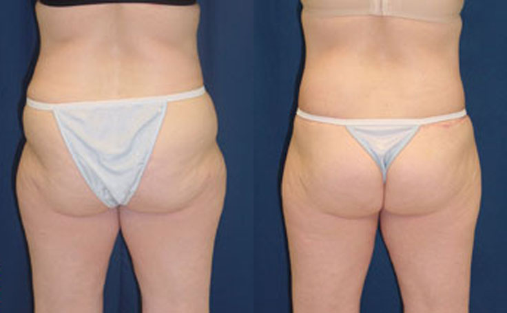 Posterior Butt Lift to tighten loose skin