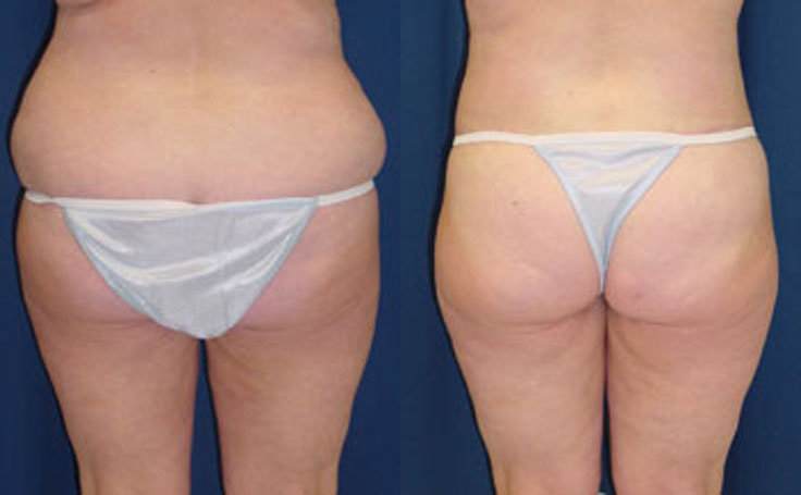 Posterior Butt Lift after Weight Loss