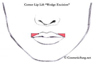 Corner lip lift illustration showing the wedge excision.