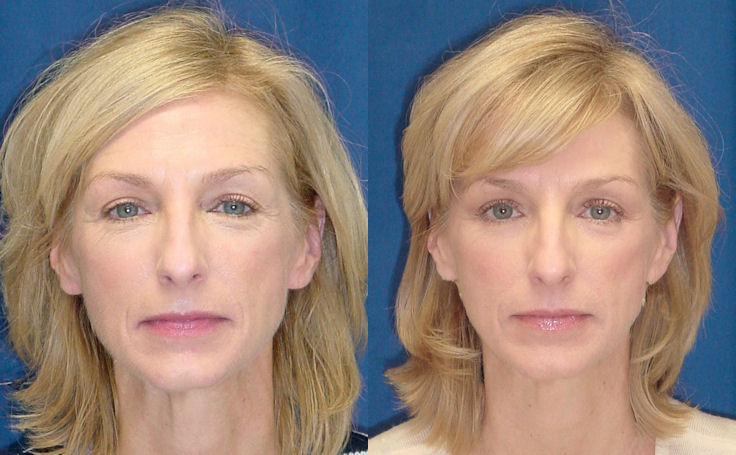 Eyelid Surgery (front view)