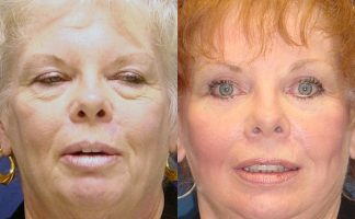 Before and after photo of an actual Eyelid Surgery patient.