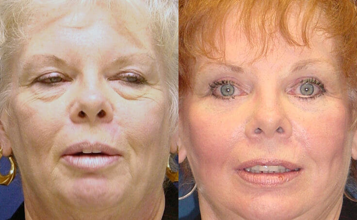 Eyelid Surgery (Blepharoplasty)