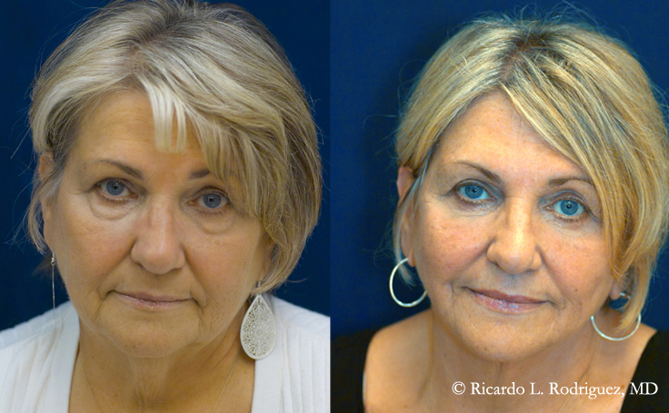 Before and After Eyelid Surgery to Remove Excess Skin on Upper Eyelids