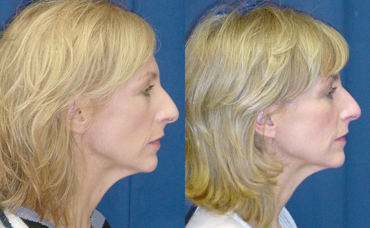 Eyelid Surgery (side view)