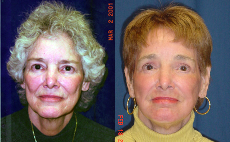 Full Facelift with Laser Resurfacing , Dr. Rodriguez in Baltimore