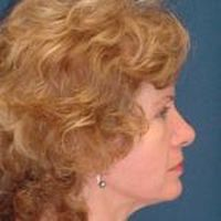 A side profile photo of a female head, showing the end result of a face lift.