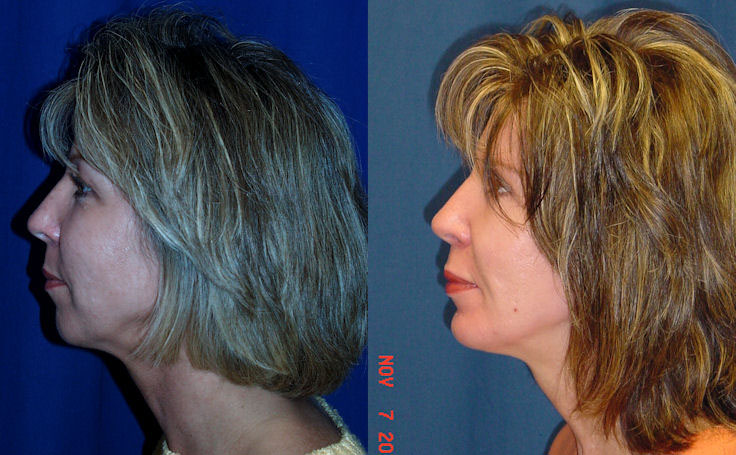 Before and after photo of an actual Facial Implants patient.
