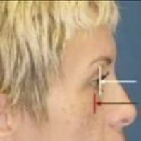 A side view photo of a female face with illustrations showing where the fat-injections will be applied.