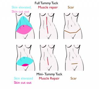 Tummy Tuck vs. Mini Tummy Tuck Abdominoplasty Surgery