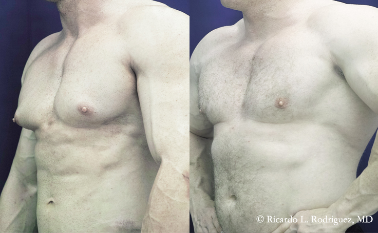 Before and after photo of an actual Gynecomastia patient.