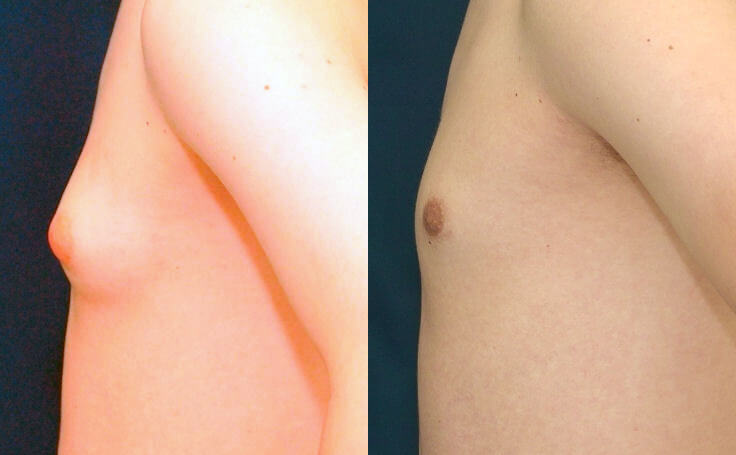 Gynecomastia surgery (side view)