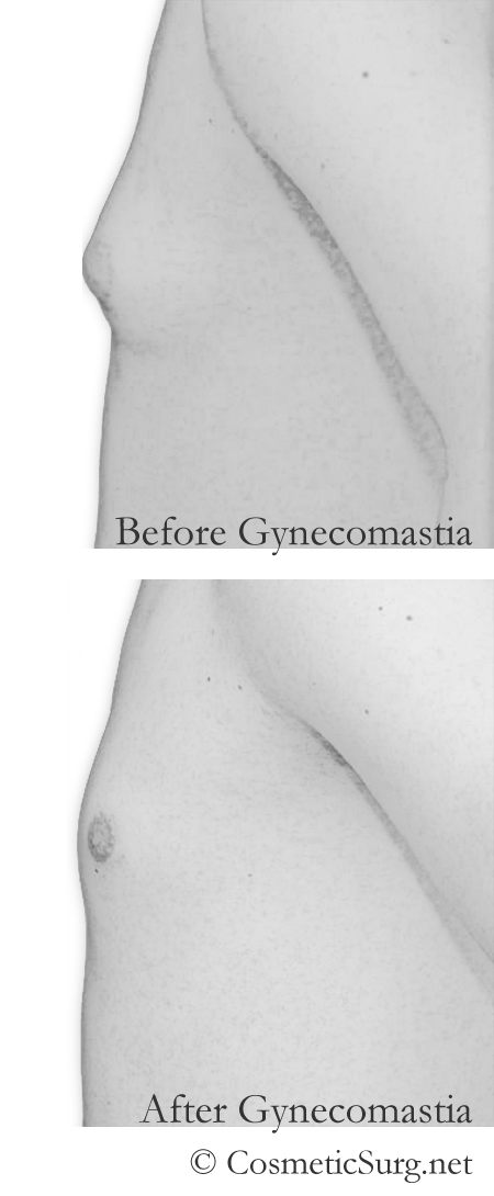 gynecomastia before and after patient illustration