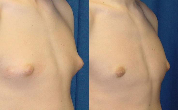 Gynecomastia surgery (angle view)