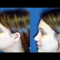 A collage of photos (side view) of a patient before & after a Rhinoplasty procedure.