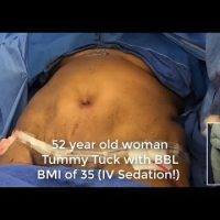 A high BMI patient on the operating table just before ondergoing Tummy tuck and Brazilian butt lift procedures.
