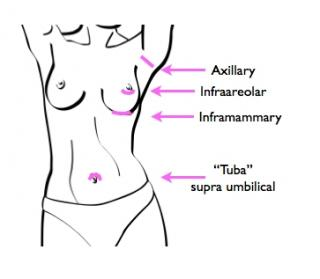 An illustration showing incision types for breast augmentation: inframammary, infraareolar, tuba.
