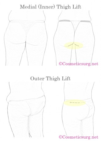 Inner and outer thigh lift incision and scar locations diagram.