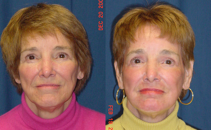 Before and after photo of an actual Laser Skin Resurfacing patient.