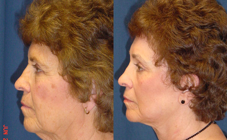 Laser Resurfacing with a Facelift side view, Dr. Rodriguez