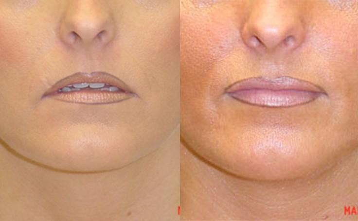 Lip Augmentation with advanta implants (front view)