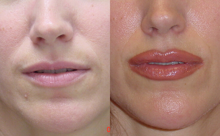 Before and after photo of an actual Lip Augmentation patient.