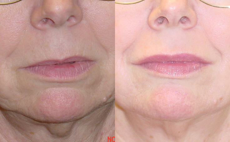 Lip Augmentation with 3.0mm advanta implants (front view)