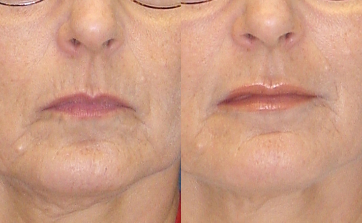 Lip Augmentation (front view)