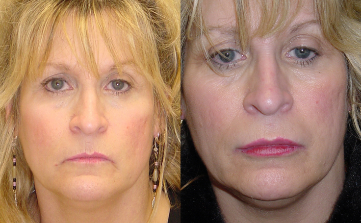 Lip Augmentation with fat injections (front view)