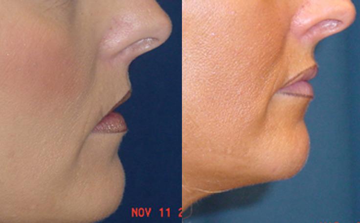 Lip Augmentation with advanta implants (side view)