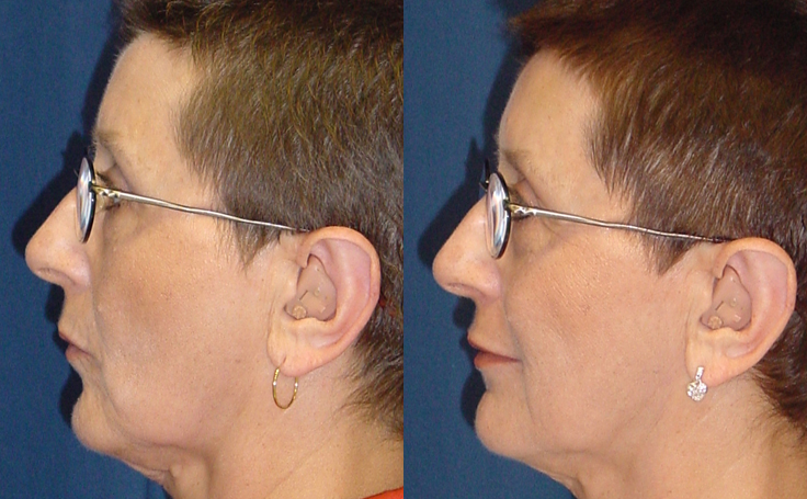 Lip Augmentation (side view)