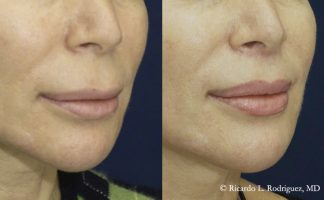 lip lift patient's before and after pictures