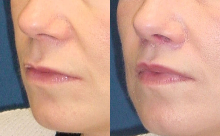 Lip Lift (angle view)