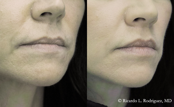 Lip Lift on a 40 year old female (angle view)