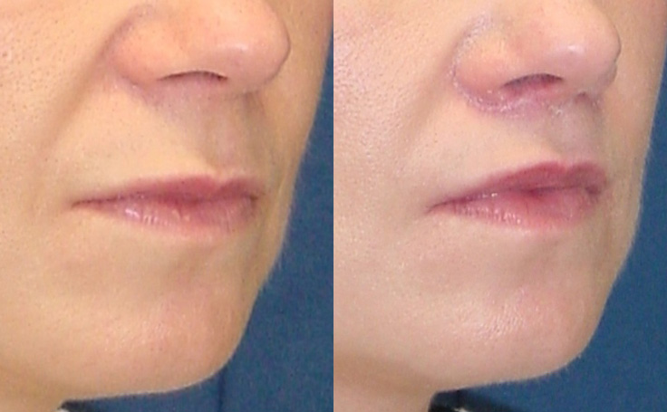 Lip Lift (alternative view)