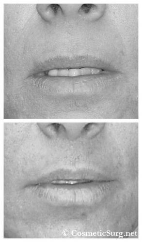 Before & after photo of a Lip lift surgery.