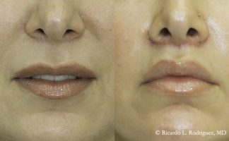 picture of a patient before and after her lip lift