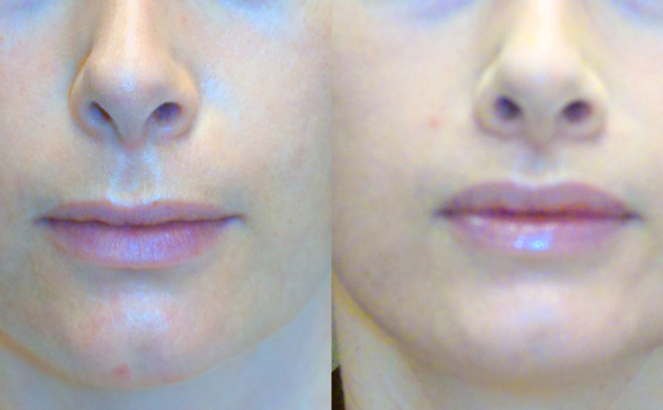 Before and after photo of an actual Lip Lift patient.