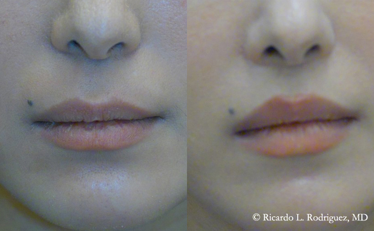Before and After Upper Lip Lift 38 year old patient