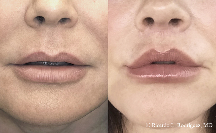 Before and After Lip Lift 49 year old patient