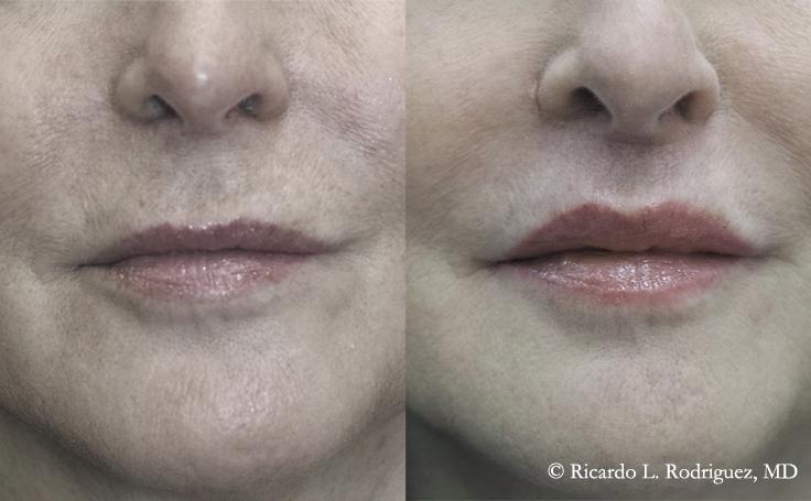 Before and After Subnasal Lip Lift