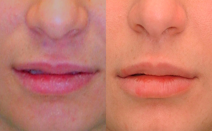 Lip Lift (front view)