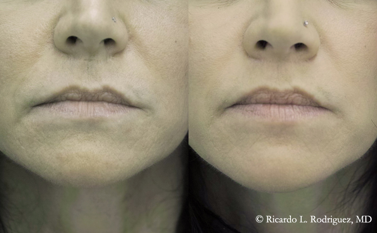 Lip Lift on a 40 year old female (front view)